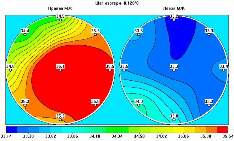 Отличительные свойства микроволновой радиотермометрии